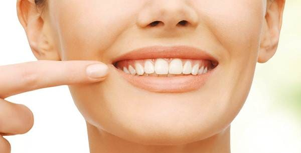 cegah gigi berkarang